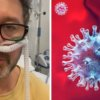 Andrzej Piaseczny zakażony koronawirusem przebywa w szpitalu